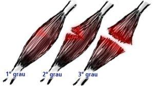 Tipos-lesao-muscular-300x169