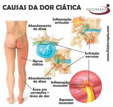 dor ciática 2