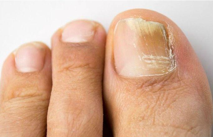 Cuidados a ter com as unhas dos pés | Revista Atletismo
